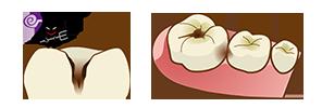 歯の溝からむし歯になりやすい