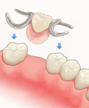 部分入れ歯(歯が1本以上残っている場合)