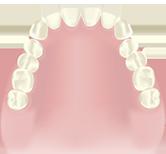総入れ歯(歯が1本もない場合)