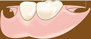 ノンクラスプデンチャー(針金がない入れ歯)